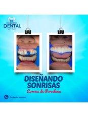 Consultorio dental García - Dental bridge