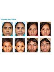 Eye Match ( Artificial Eye Centre ) - Eye Clinic in India