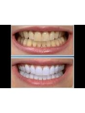 Elite Dental Medical Center - Our Whitening Specialist - Zoom whitening!