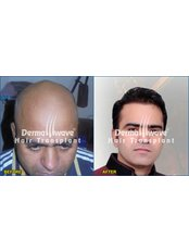 Dermawave Hair Transplant and Dermacare Skin & Laser Cdentre - Hair Loss Clinic in India