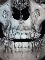 3D X-Ray in Nuevo Progreso - Dental Clinic in Mexico