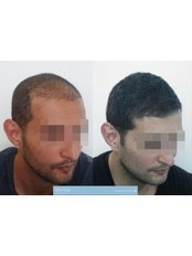 101 Hair Clinic - Hair Loss Clinic in Serbia
