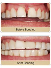 DENTESS A Complete Dental Clinic - Cosmetic dentistry