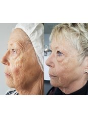 ReshapeU Beauty Clinic  with Hull Laser Treatments - HIFU 1 Month after 1st Treatment.