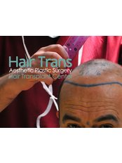 Hair Trans - Hair Loss Clinic in Turkey
