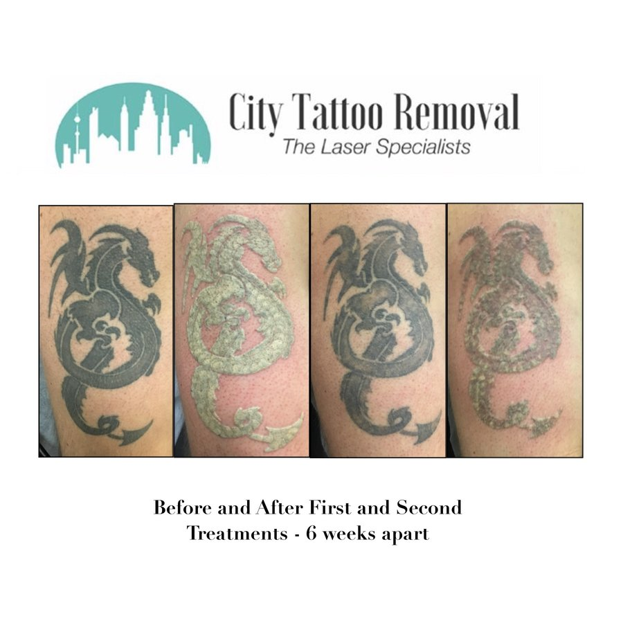 City Tattoo Removal in Brisbane City, Brisbane • Read 1 Review