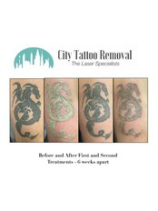 City Tattoo Removal - Medical Aesthetics Clinic in Australia