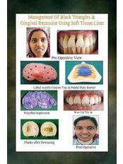 RBS Dental Clinic - Dental Clinic in India