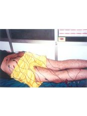Orthocare Rehabilitation Centre Physio & Laser Clinic - Acupuncture Clinic in India