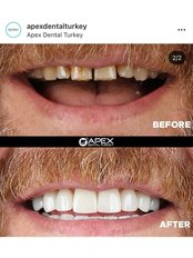 Apex Dental Turkey - Full Mouth Transformation By Apex Dental Turkey ( Colours and Styles are chosen by patients)