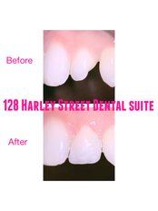128 Harley Street Dental Suite - One visit pain-free smile enhancement by Dr Milisha