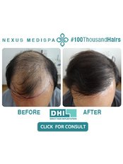 Nexus Clinic - Hair Loss Clinic in Malaysia