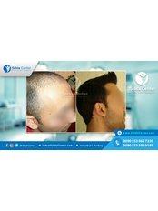 Selda Medical Center - Hair Loss Clinic in Turkey