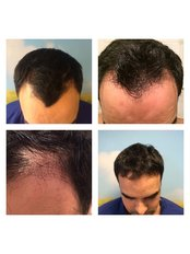 Better Hair Transplant Clinics - London - Hair Loss Clinic in the UK