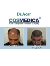 Cosmedica Dr.Acar HairTransplant & Esthetics - Hair Loss Clinic in Turkey