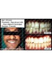 Smiles n More Orthodontic & Invisalign Centre - Clear Aligner(Invisalign)case 2
