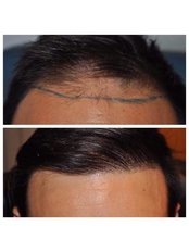 Better Hair Transplant Clinics - Birmingham - Hair Loss Clinic in the UK