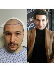DK Hair Transplantation Clinic Turkey - Hair Loss Clinic in Turkey