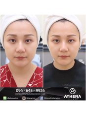 Athena Clinic - Medical Aesthetics Clinic in Thailand