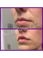 Pure Perfection Clinic - Before and After Lip Enhancement