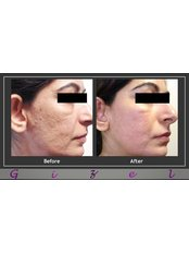 Gizele Clinic - Co2 fractional post acne scars