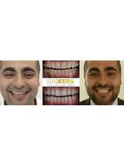 Mineers Smile Center - Dental Clinic in Lebanon