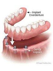 Aashvi Dental Care - Implant based denture
