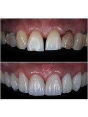 Side Dental Centre - Laminate VeneeR