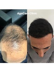 Age Care Clinic - Hair Loss Clinic in the UK