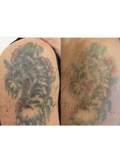Laser Tattoo Removal Clinic Croydon & London - Beauty Salon in the UK