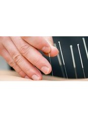 Acusupathy Therapy Centre - Acupuncture Clinic in India