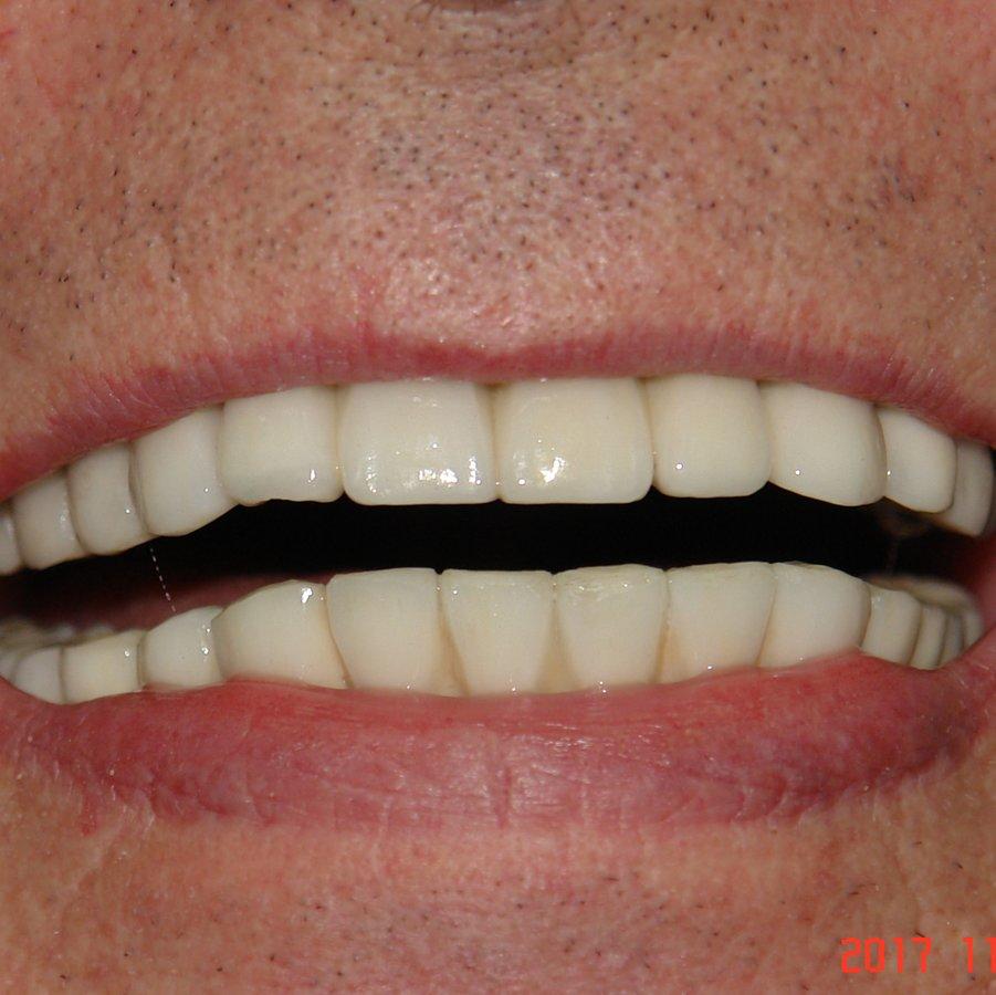 Dental Creations In Mumbai India Read 32 Reviews