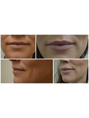 Wrinkle Free Me - Medical Aesthetics Clinic in Ireland