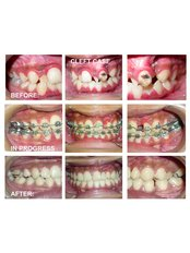 Dental Orthodontic Clinic - GIVE YOURSELF A GOOD SMILE