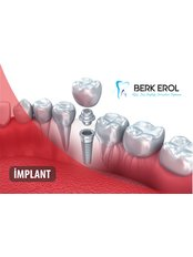 Dr. Berk EROL DDS PhD Oral Surgeon&Implantologist - Dental Implant