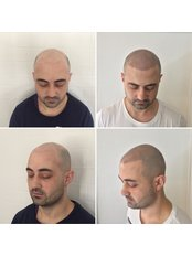 The Look SMP Clinic - Hair Loss Clinic in Australia