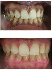 Cabinet dentaire docteur Zied Ben Hamed - Depigmentation