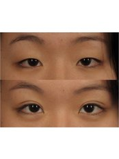 Alka Cosmetic Dermatology - Blepharoplasty / Asian eye lid surgery
