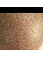 Fiona Akkohen Scalp Micropigmentation Studio - Hair Loss Clinic in Turkey