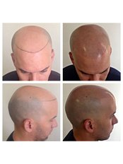 MSP Clinic - Scalp Micro Pigmentation Specialists