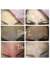 The Aesthetic Rooms - 2 areas of wrinkle injections