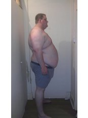 London Obesity Centre - Before gastric bypass 254kg