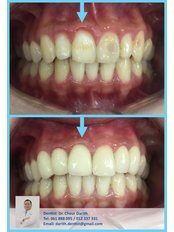 Dr. Chour Darith - Dental Clinic in Cambodia
