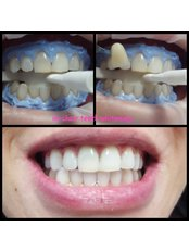 Happy Smiles Oral Hygiene & Teeth Whitening Studio - BEFORE & AFTER TEETH WHITENING IN OFFICE