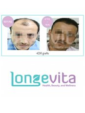 Longevita Hair Transplant - Izmir - Hair Loss Clinic in Turkey