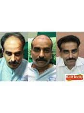 Hair Science kolhapur - Hair Loss Clinic in India