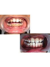 Dr Jindals Dental and Oral Health Clinic - scaling and polishing of teeth