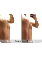 Surgery Group Ltd Newcastle upon Tyne - Gynecomastia surgery before and after