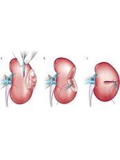 Kidney Removal - Mumbai Urology