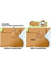 Circumcision - Mumbai Urology